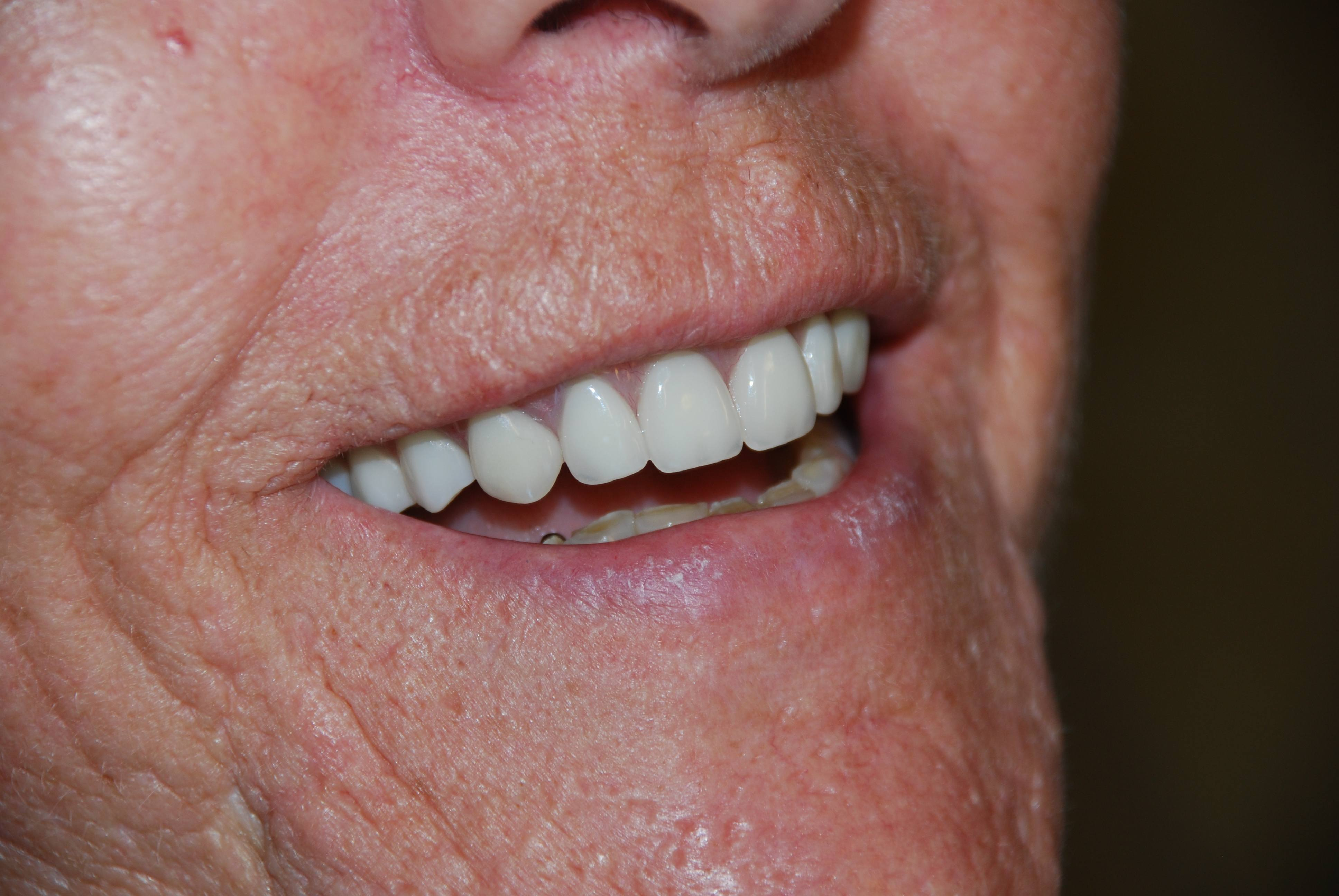 Everett Implant Supported Overdenture Gallery 19th