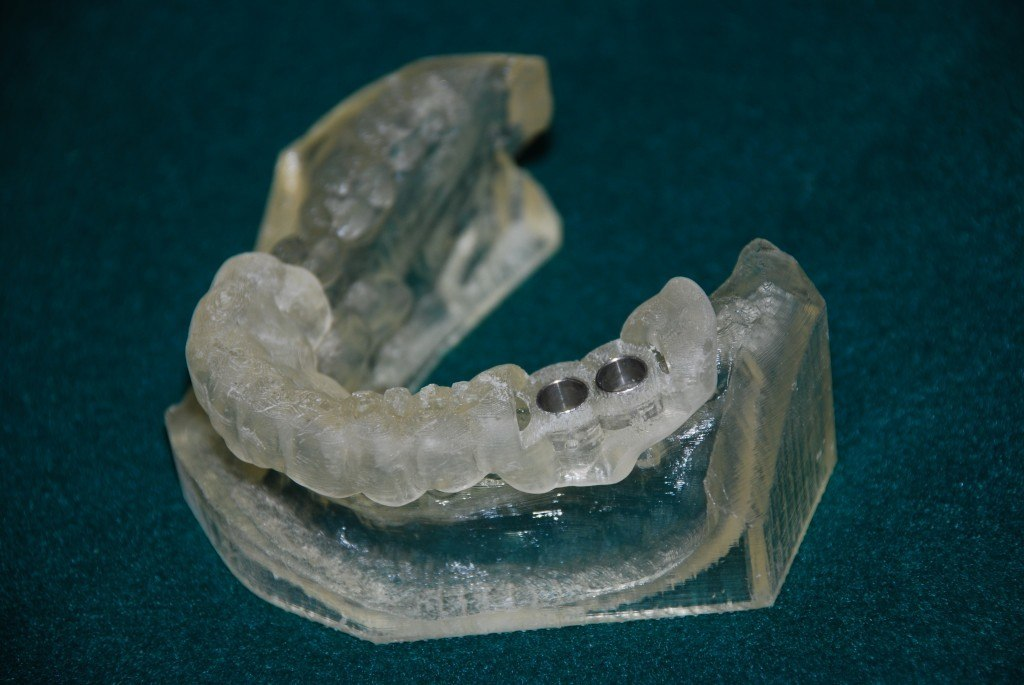 IMPLANT CROWN (2)