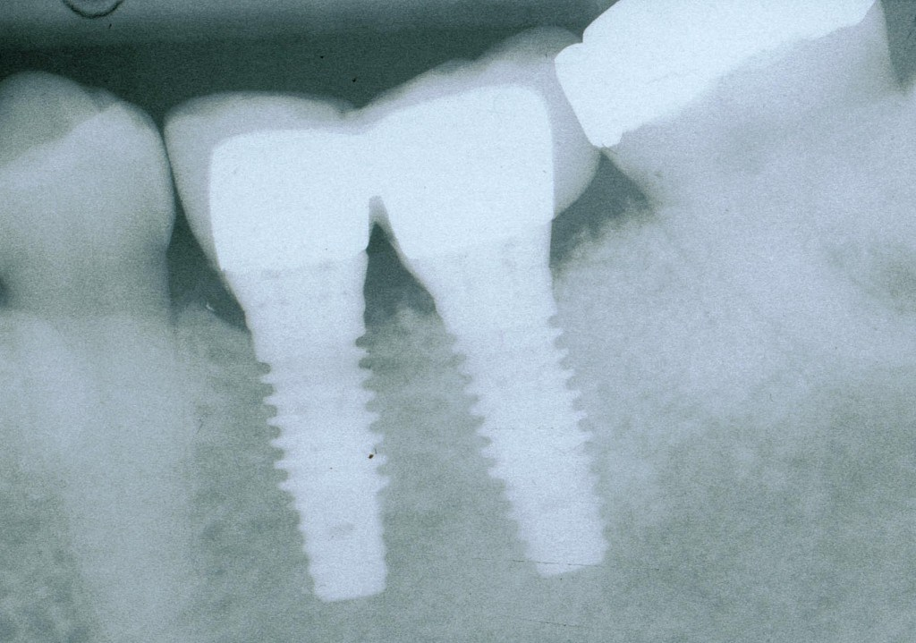 IMPLANT CROWN (3)
