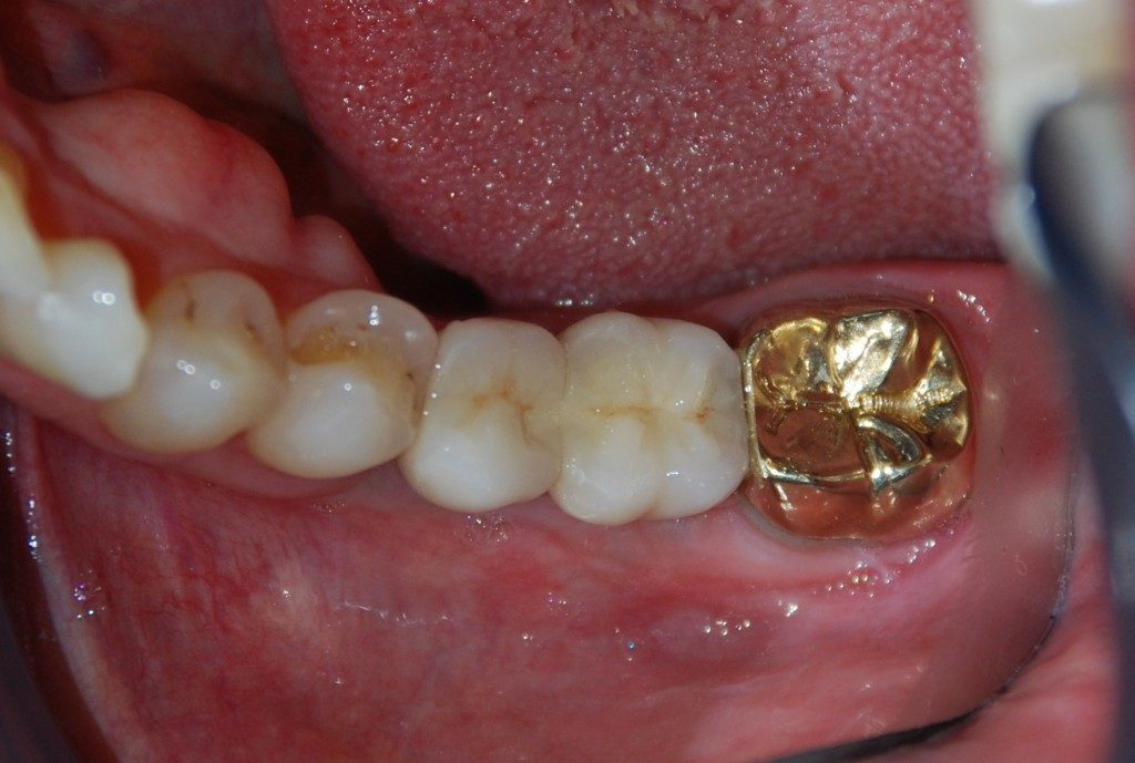IMPLANT CROWN (4)