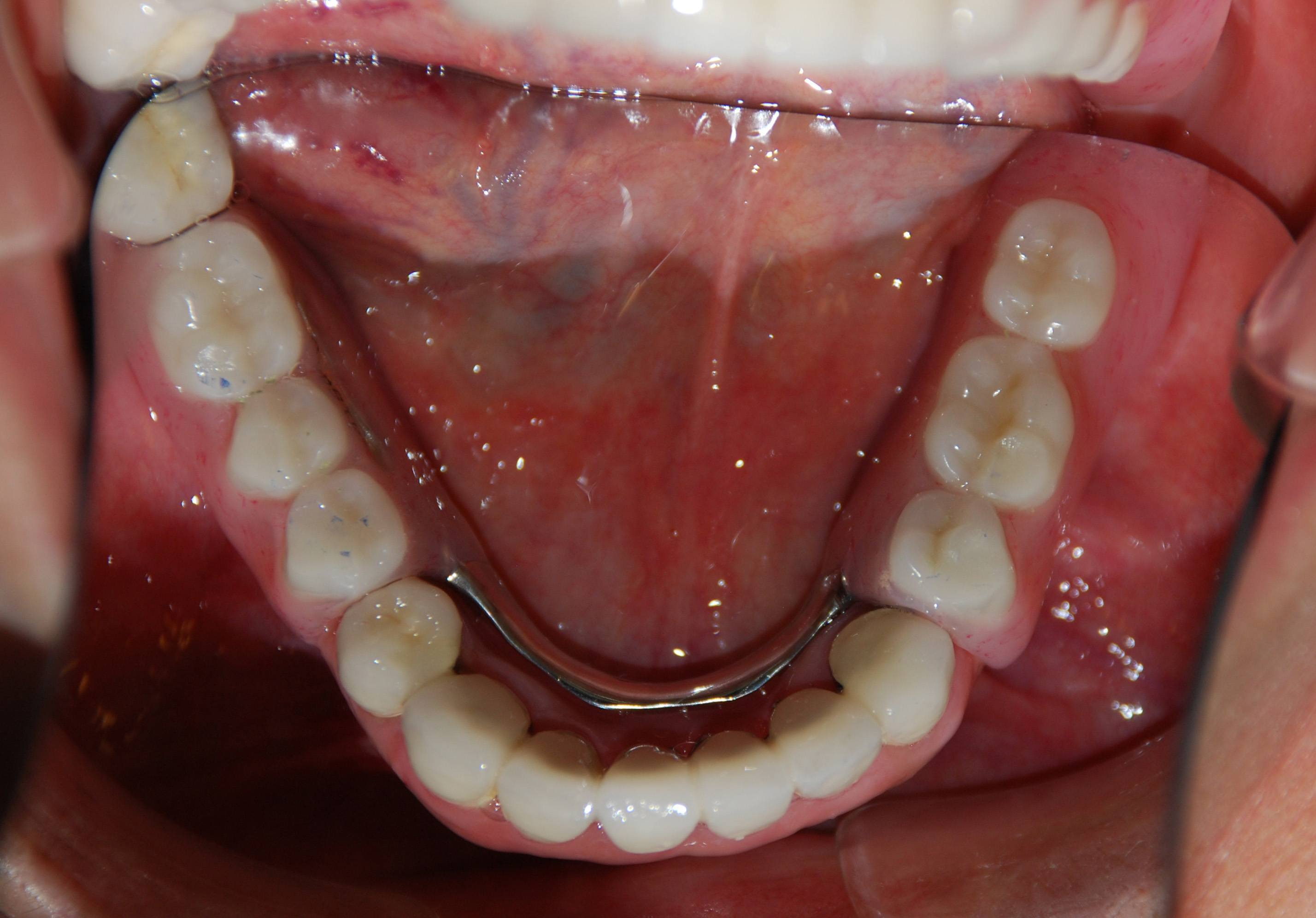 how to fix a partial denture at home